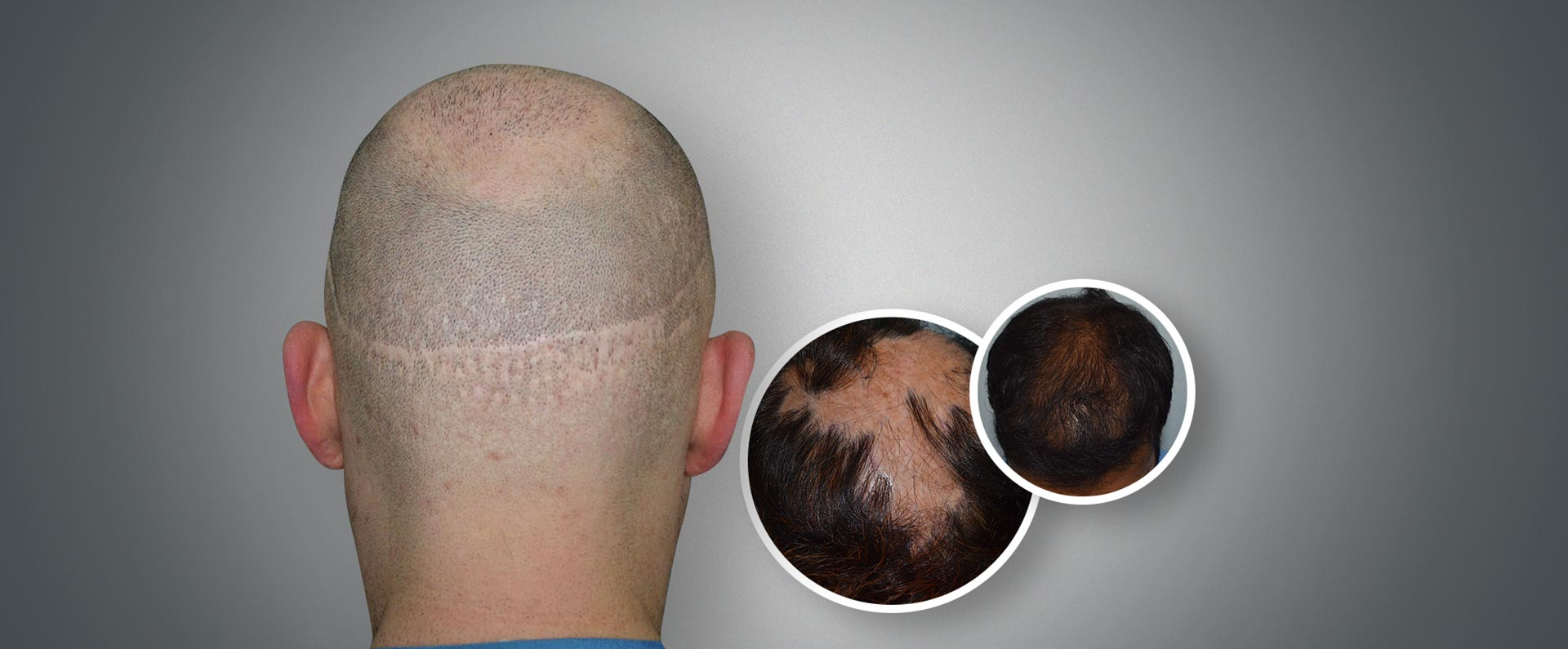 Reasons to try Scalp Micropigmentation
